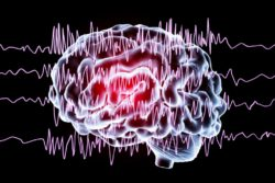 Seizures and Seizure Disorders